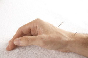 acupuncture hand 1